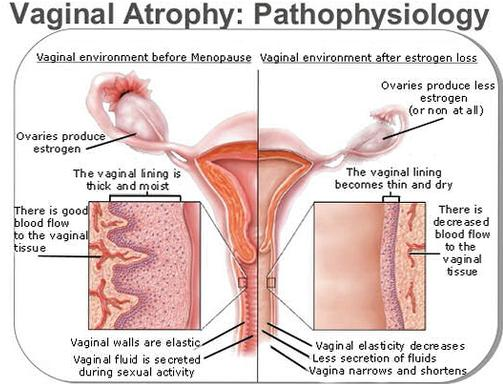 Atrophy of both the endometrium and vagina can be the cause of PMB (source)