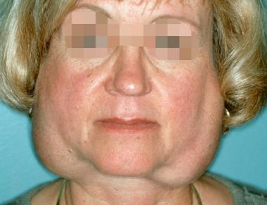 This patient with Sjögren syndrome has very obvious bilateral parotid gland swelling (source)