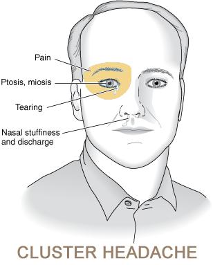 Cluster Headache Stepwards