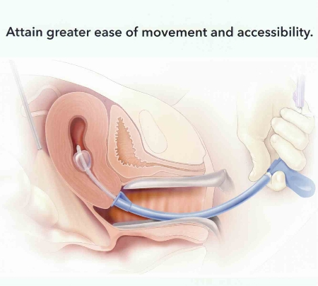Remarkable, assisted vaginal hysterectomy consider, that