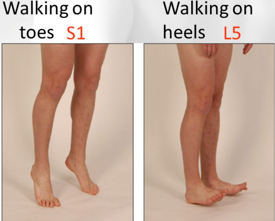 Testing heel/toe walking can detect issues with the L5/S1 nerve roots respectively (source)