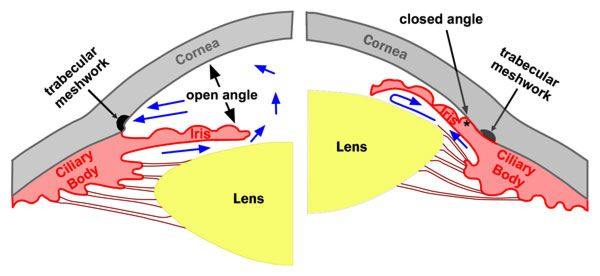 Comparison between open and closed-angle glaucoma. The real difference is due to WHERE the pressure/fluid collects in the eye (relative to the iris, source)