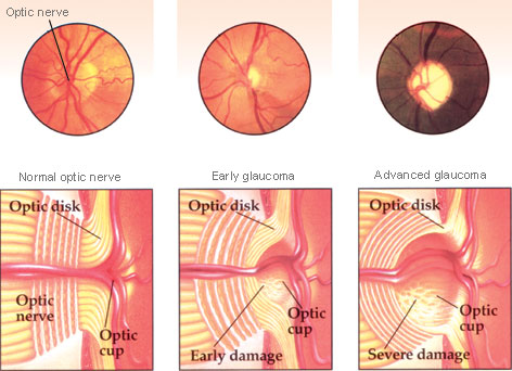 Cupping of the optic nerve (source)