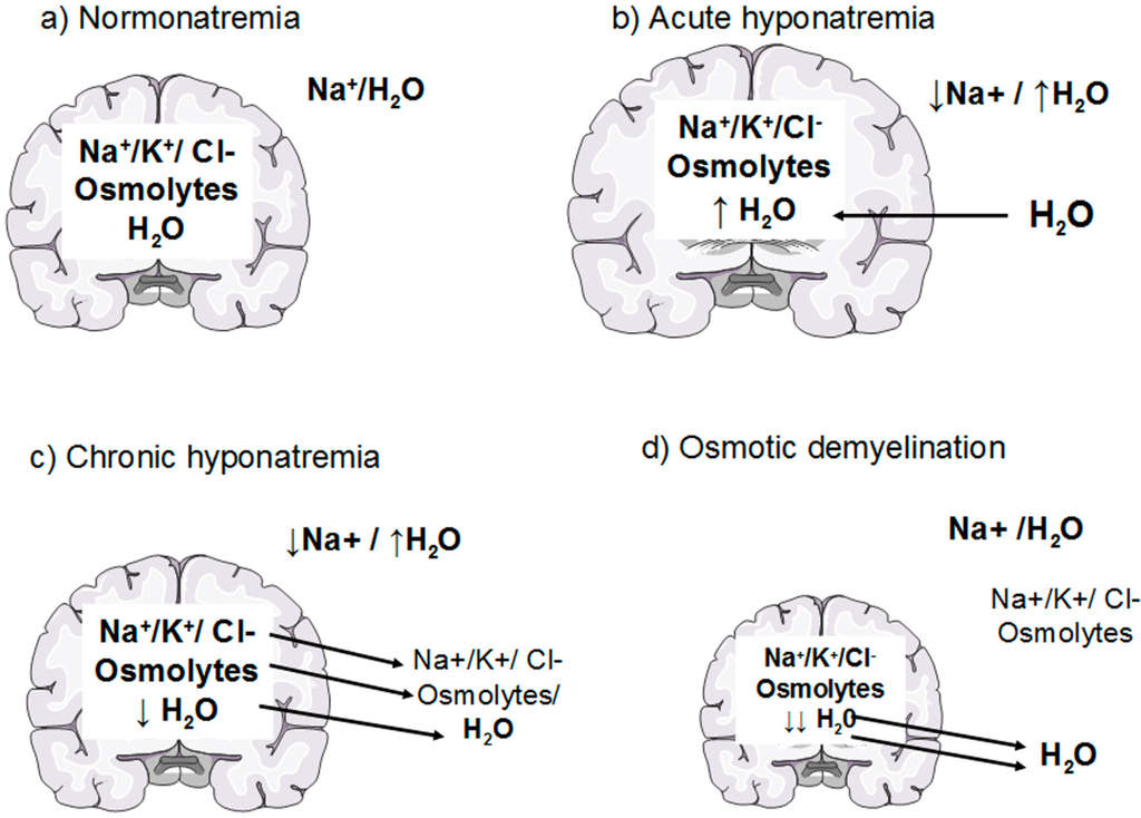 It is important to appreciate the delicate balance between electrolytes and fluid that exist in the brain. Hyponatremia will cause influx of water into the brain. Similarly, rapid correction of hyponatremia will result in rapid water loss, as osmotic demyelination (source)
