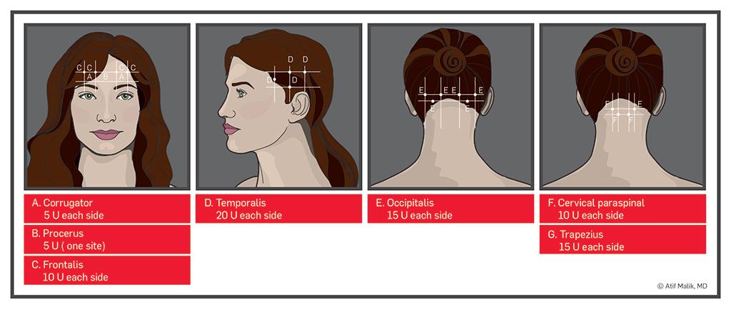 Migraine - Stepwards