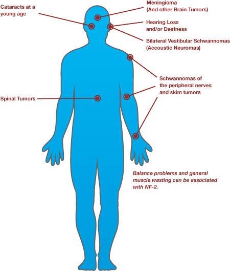 Neurofibromatosis type I  Wikipedia