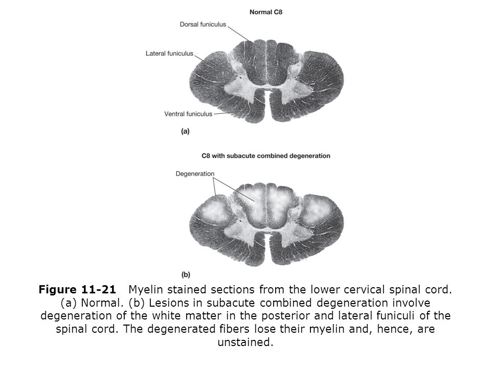 Subacute Combined Degeneration - Stepwards B12 Deficiency Spinal Cord