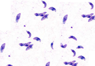 Visual appearance of Toxoplasma gondii under light microscopy (source)