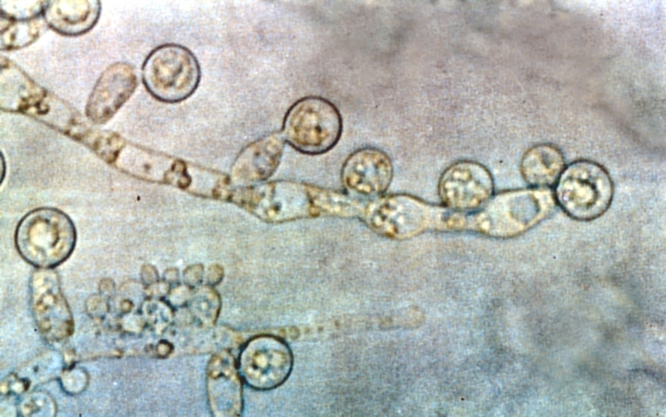 The yeast organism Candida albicans is responsible for the vast majority of yeast infections (source)