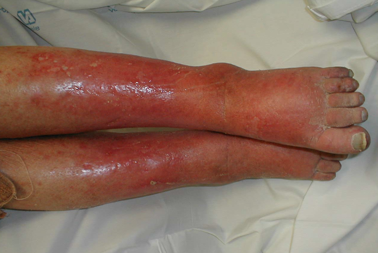 Dermal infections can be seen readily on the physical exam, and warrant some thought in deciding the appropriate treatment (source)