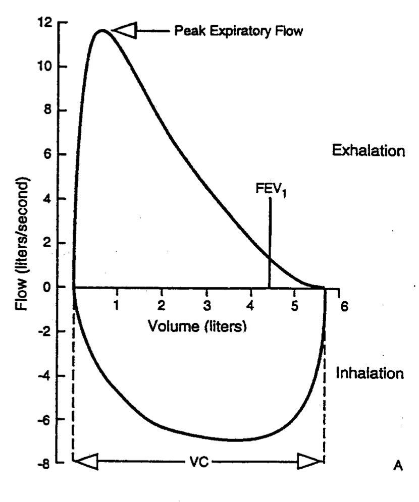 The graph represents a classic example of a flow volume loop (source)
