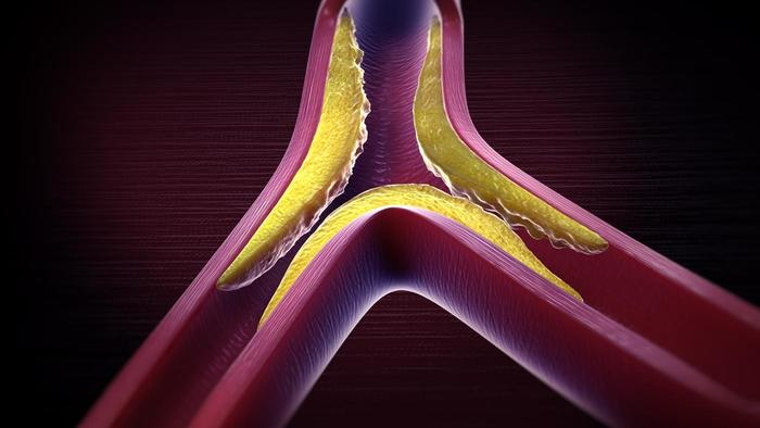 Hyperlipidemia is an important health topic that affects a large fraction of individuals around the world. It is in part responsible for vascular disease (pictured above, source).