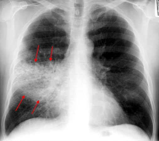 While the pulmonary exam section of our physical exam can raise suspicions, it is ultimately the chest X-ray that confirms many pulmonary infections. In this context we need a systematic approach to deciding what antibiotic to give patients (source)