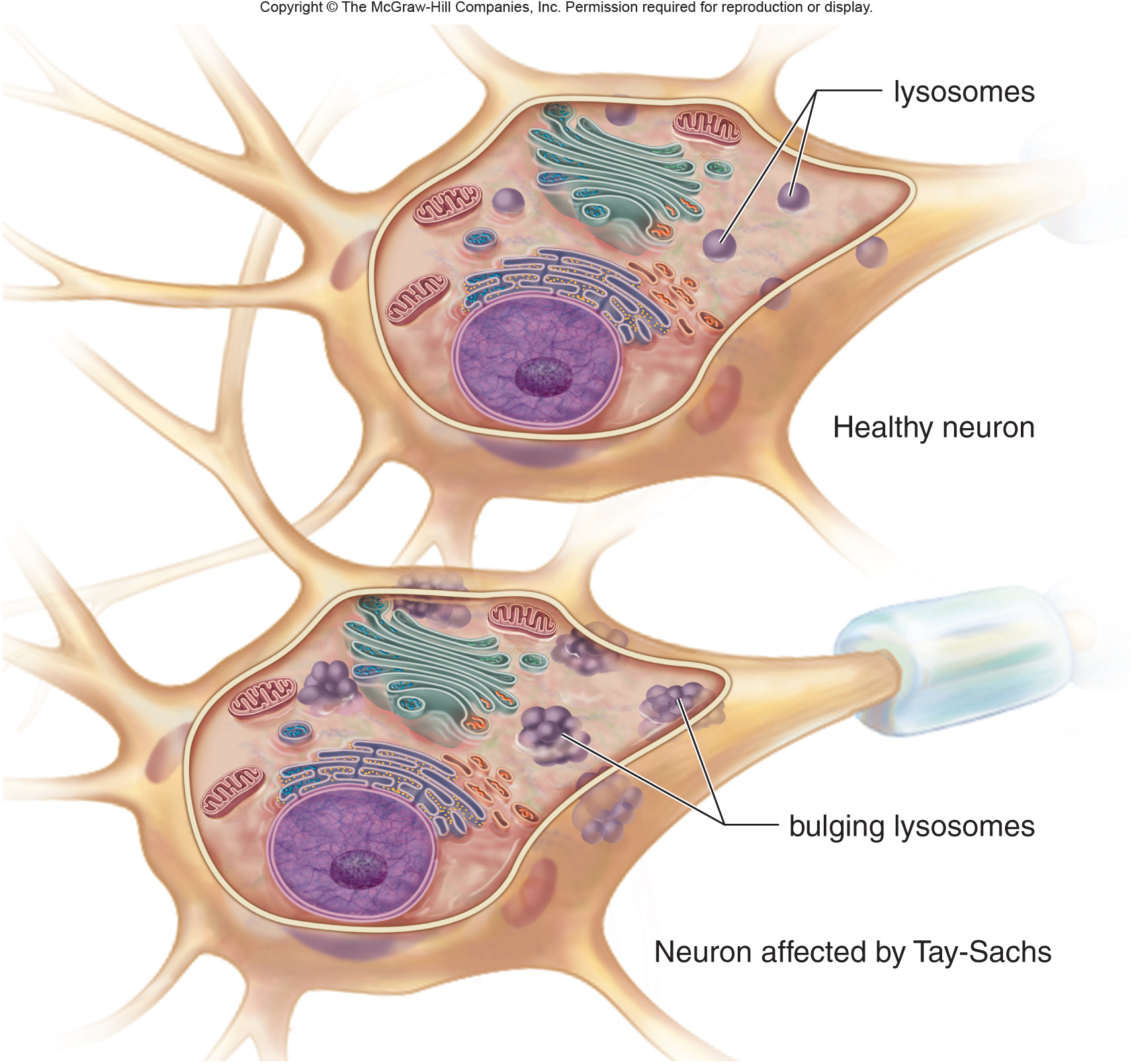 Accumulation of GM2 gangliosides within the lysosomes of neural cells will cause swelling and dysfunction (source)