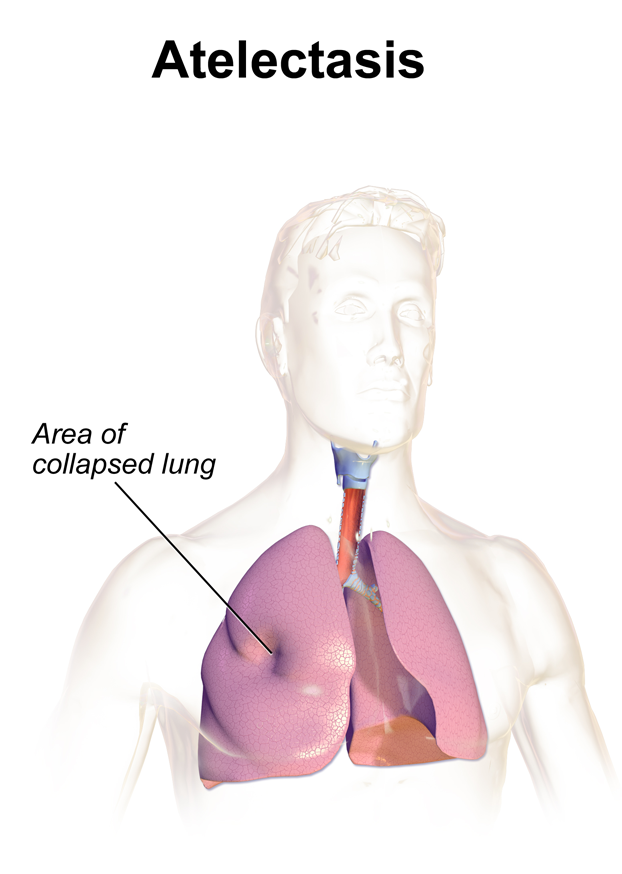 "Atelectasis refers to lung collapse, however with the important caveat that the visceral and parietal pleura remain ""connected"" to one another (source)."