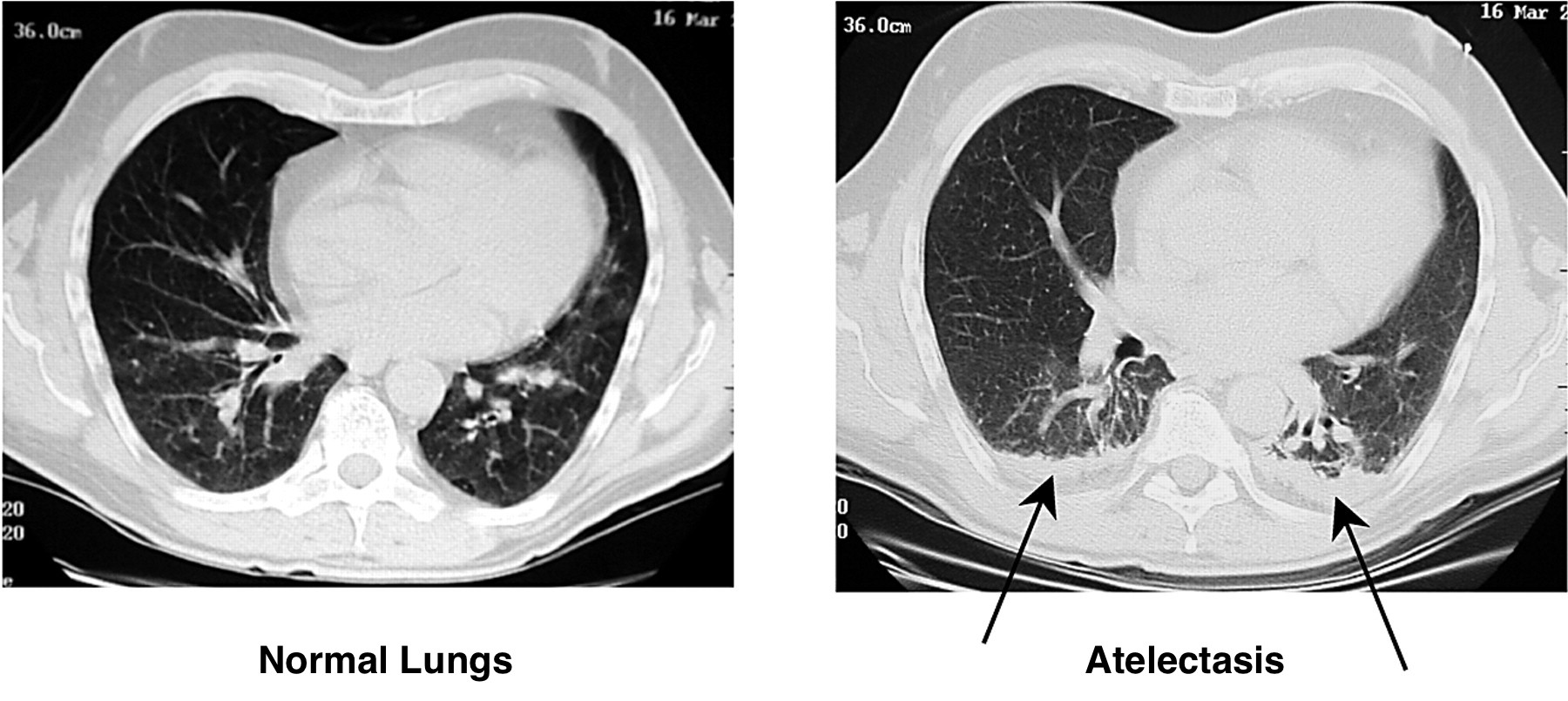 Visual appearance of atelectasis on a CT scan (right pane). Normal lungs provides as reference (left pane, source)