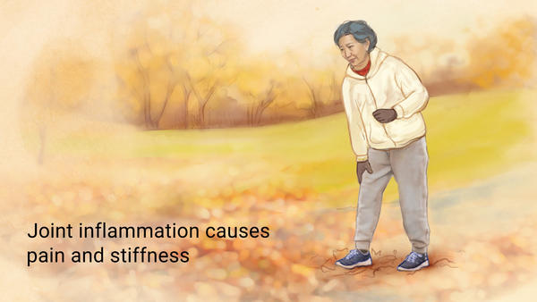 The topic of arthritis is one that can become confusing. This page was created to provide a systematic approach to this broad category within medicine (source)