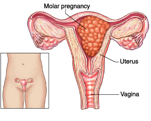 One example of a molar pregnancy (source)