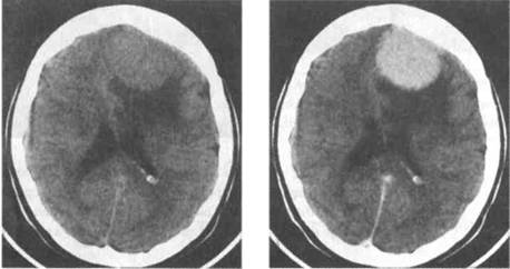 CT scan of a cranial meningioma before (left pane) and after (right pane) the administration of IV contrast (source)