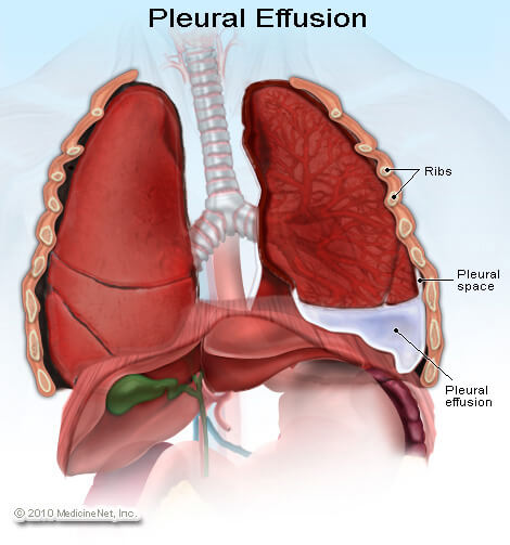 This schematic shows the anatomical location of where fluid collects in a pleural effusion. It is in the pleural space between the parietal and visceral pleura (source).