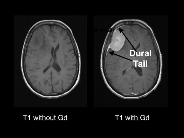 """Appearance of meningioma on a T1 weighted MRI image before and after contrast enhancement. The characteristic """"dural tail"""" can be seen on the right pane with enhancement (source)."""