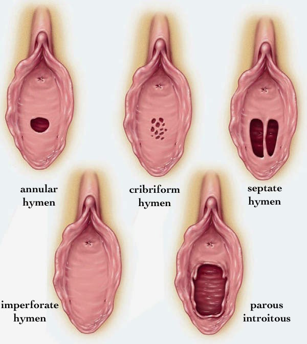 The various types of hymens (source)