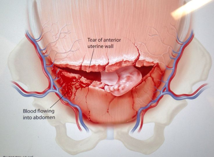 A uterine rupture is a self descriptive condition. It is a very serious complication given its nature (source)