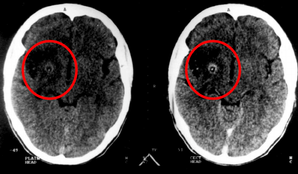 This is an axial CT scan of the brain. The pane on the left is without contrast, and the pane on the right is after IV contrast administration. The ring enhancing lesion can be clearly seen (source).