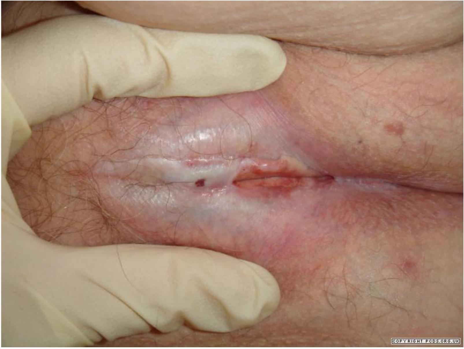 Skinny ass spreading porn pic