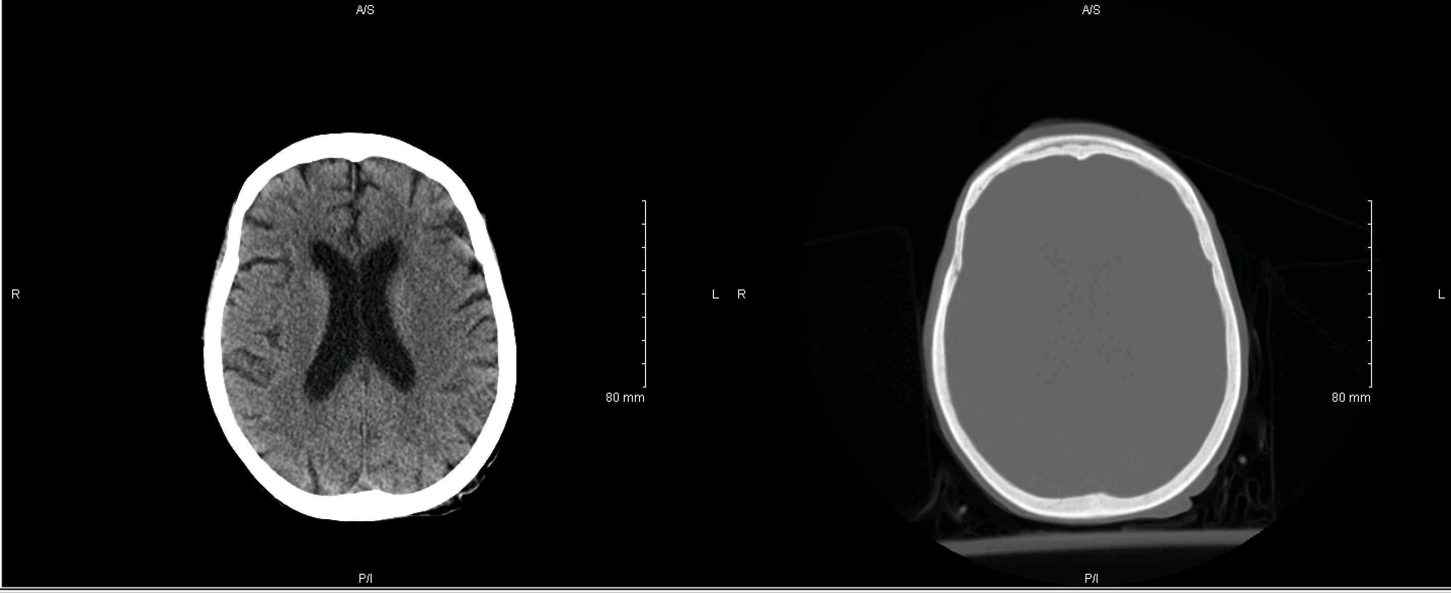 Interpreting A Non Contrast Head Ct Scan Stepwards