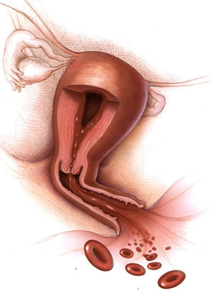 Abnormal uterine bleeding is a self descriptive condition that can have many different etiologies (source)