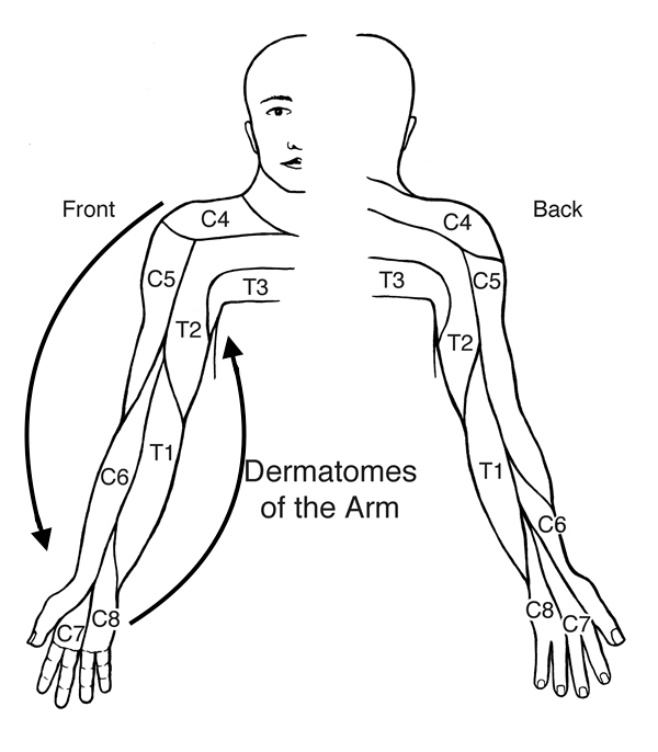 By pretending that the arm is an elongated clock face, we see that the dermatomes go from C4 to T3 (in order) in a counter clockwise pattern (when viewing the patient from the front). This pattern is preserved, but reversed when viewing the patient from the back (source).