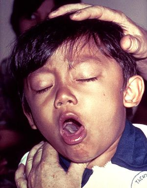 """Pertussis is characterized by its distinctive """"whooping cough"""" (source)"""