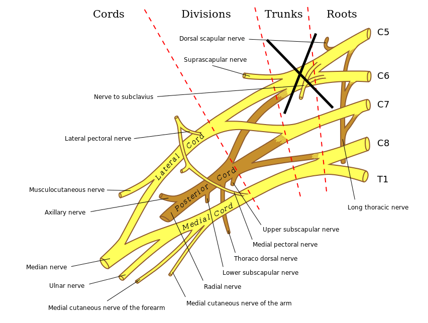 Damage to the upper trunk of the brachial plexus (containing nerves from C5 and C6) is typically responsible for Erb palsy (source)