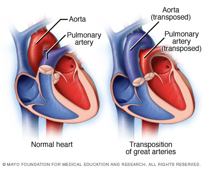 Comparison of a normal heart with one that has the great vessels transposed (source)