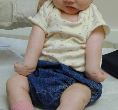 Patient with bilateral Erb palsy showing arm abduction and internal rotation clearly (source)