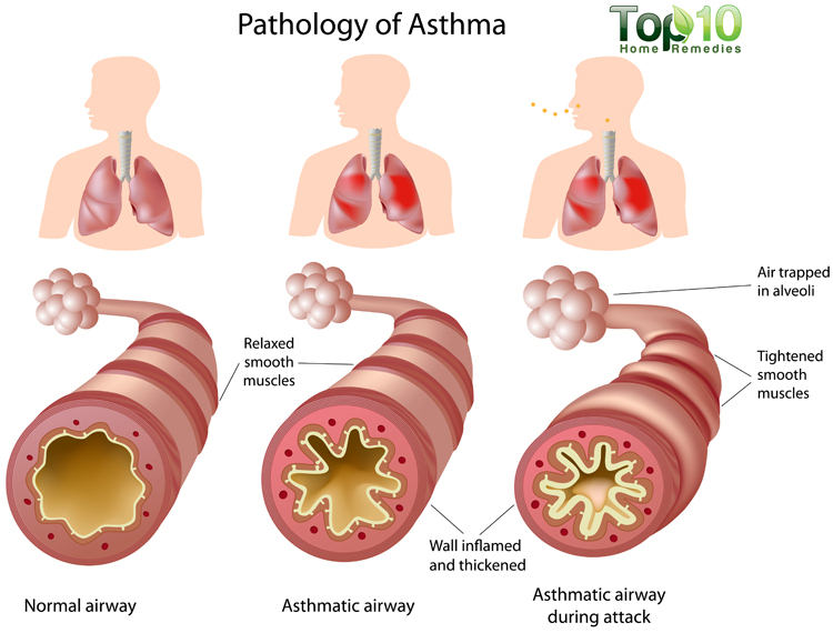 A central feature of asthma is the presence of inflammation in the airways (source)