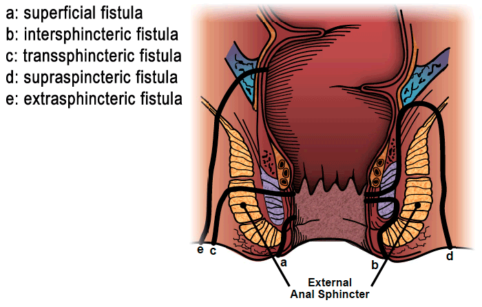There are various categorizations of anal fistulas based upon their location (source)