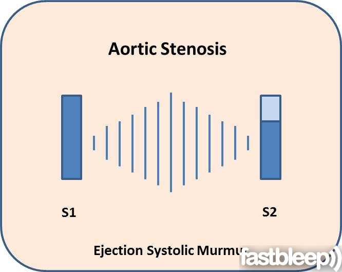 Guide To Heart Murmurs Aortic Stenosis Murmur Stepwards
