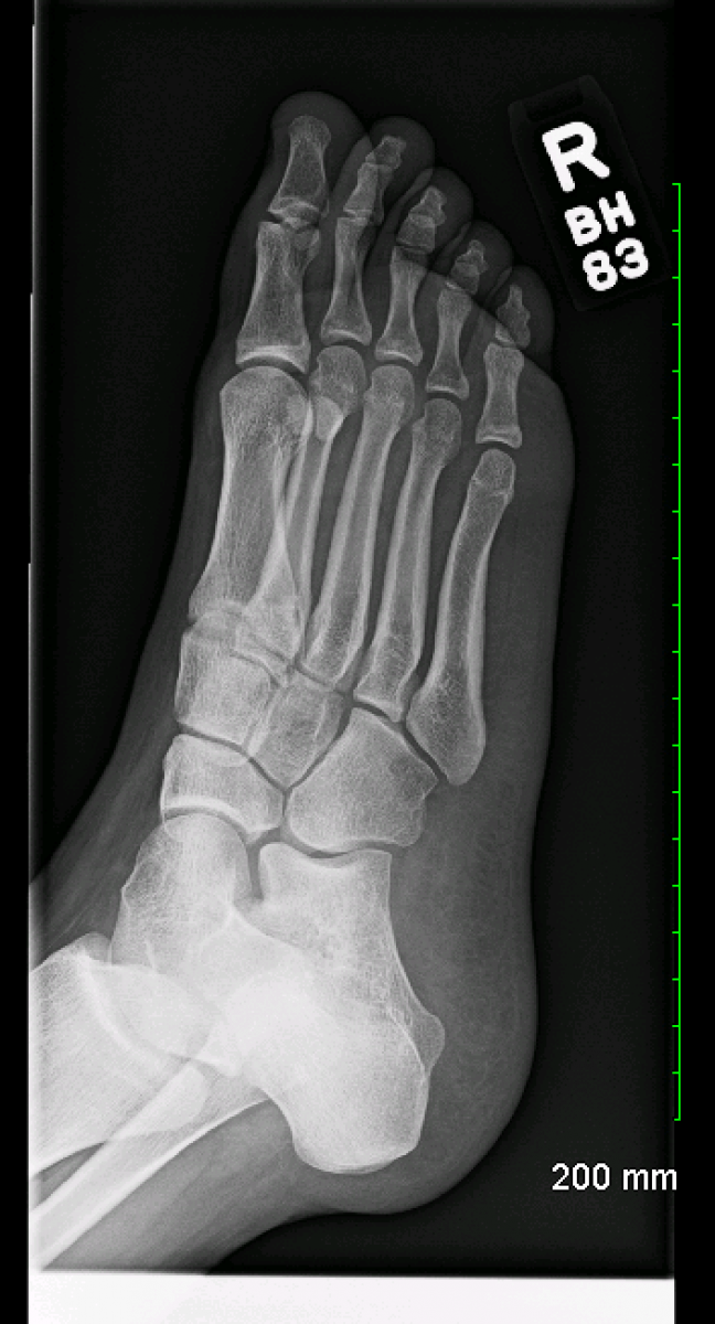 Archive Of Unremarkable Radiological Studies: Foot X-Ray - Stepwards