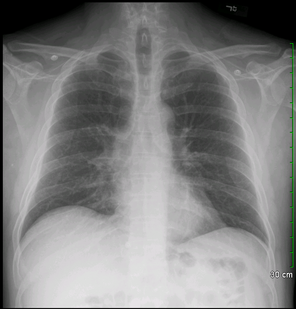 Archive Of Unremarkable Radiological Studies: Chest X-Ray - Stepwards