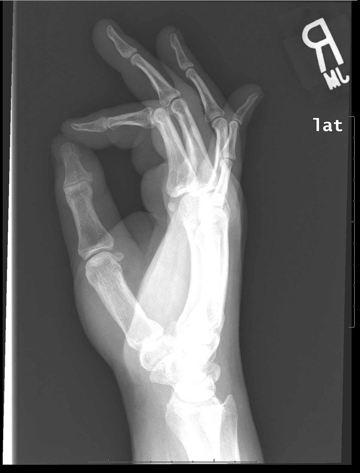 Archive Of Unremarkable Radiological Studies Right Hand X Ray