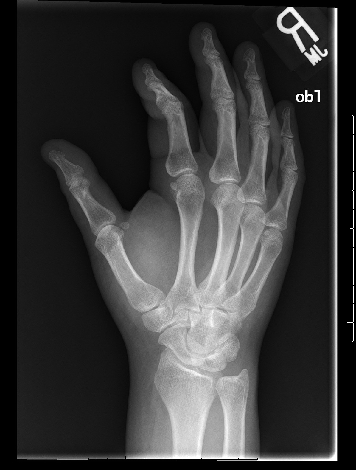 Archive Of Unremarkable Radiological Studies: Right Hand X-Ray ...