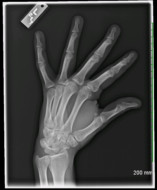 Archive Of Unremarkable Radiological Studies: Left Hand X-Ray ...