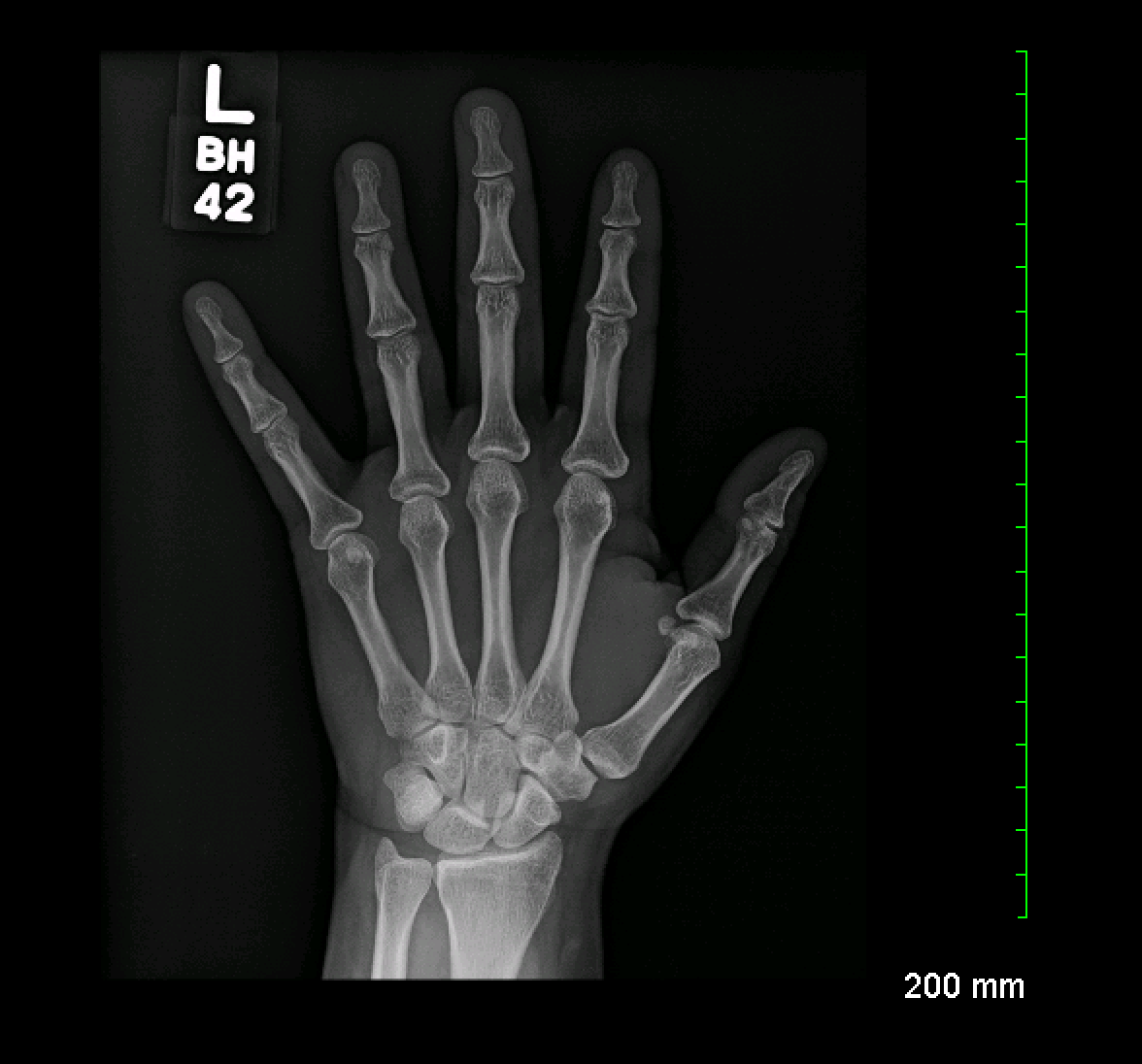 Archive Of Unremarkable Radiological Studies Left Hand X Ray