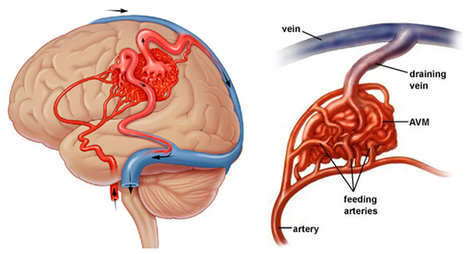 arterio venous malformation Arteriovenous malformation arteriovenous malformation (avm) is a tangled group of blood vessels with abnormal connections between arteries and veins.