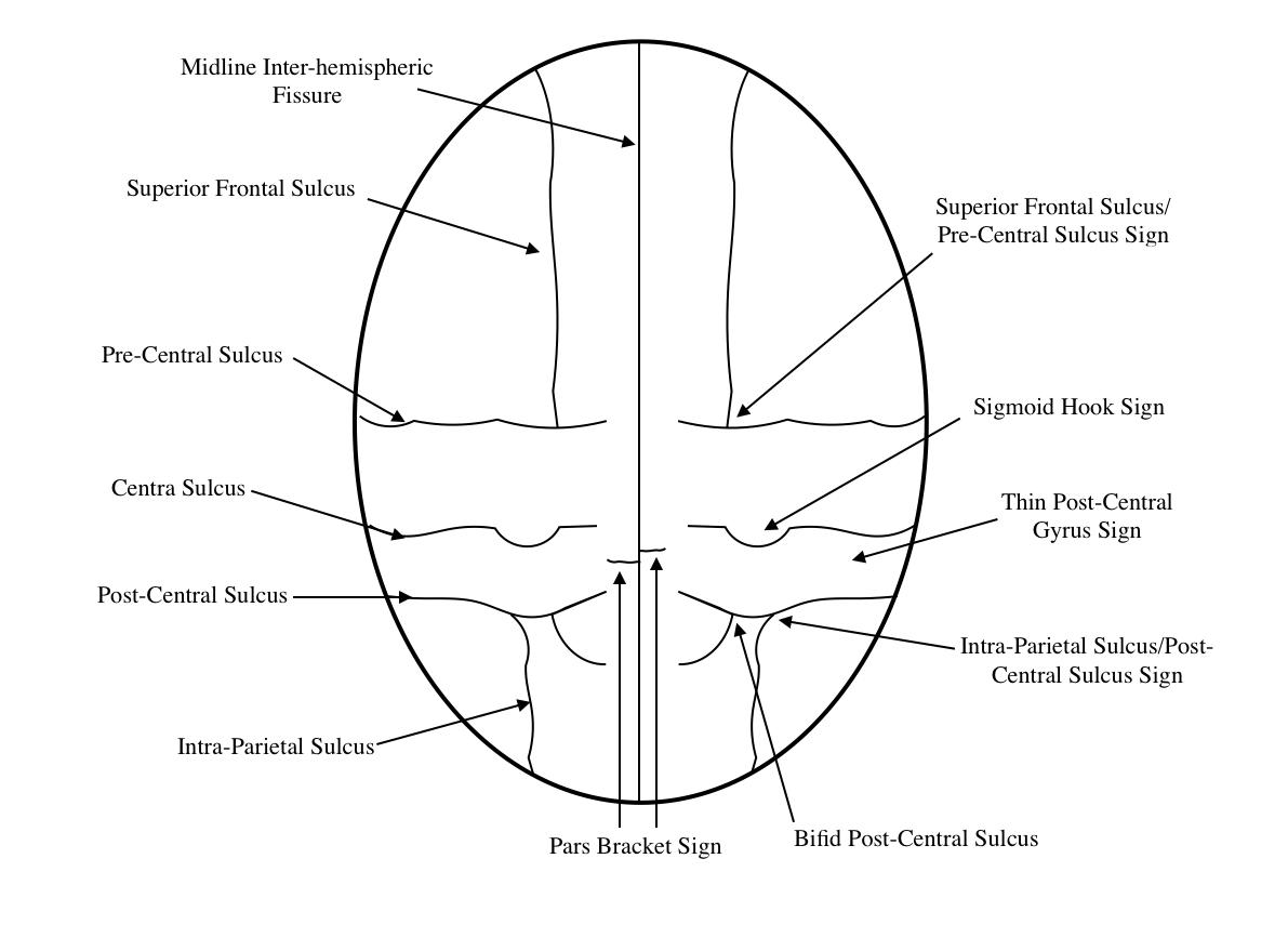 Radiological Anatomy Central Sulcus Stepwards