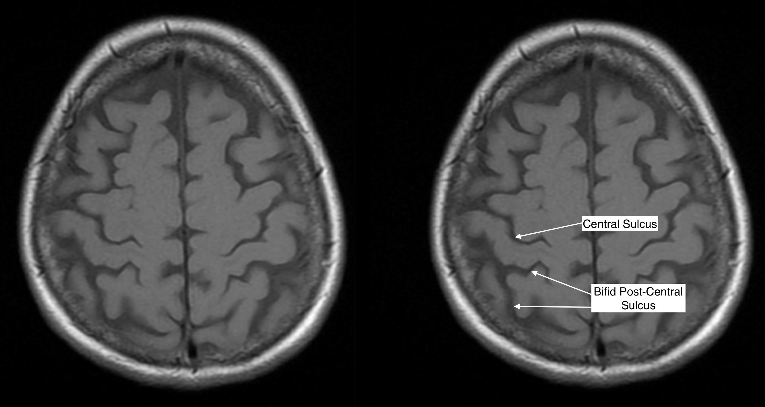 Radiological Anatomy: Central Sulcus - Stepwards