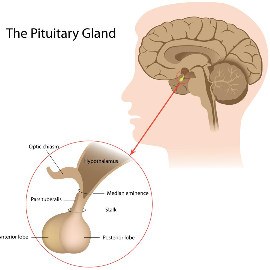 Radiological Anatomy Pituitary Gland Stepwards