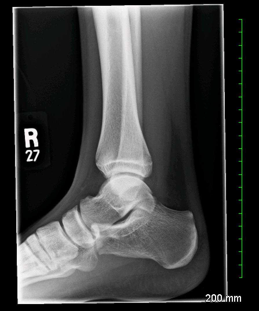 Archive Of Unremarkable Radiological Studies: Ankle X-Ray - Stepwards